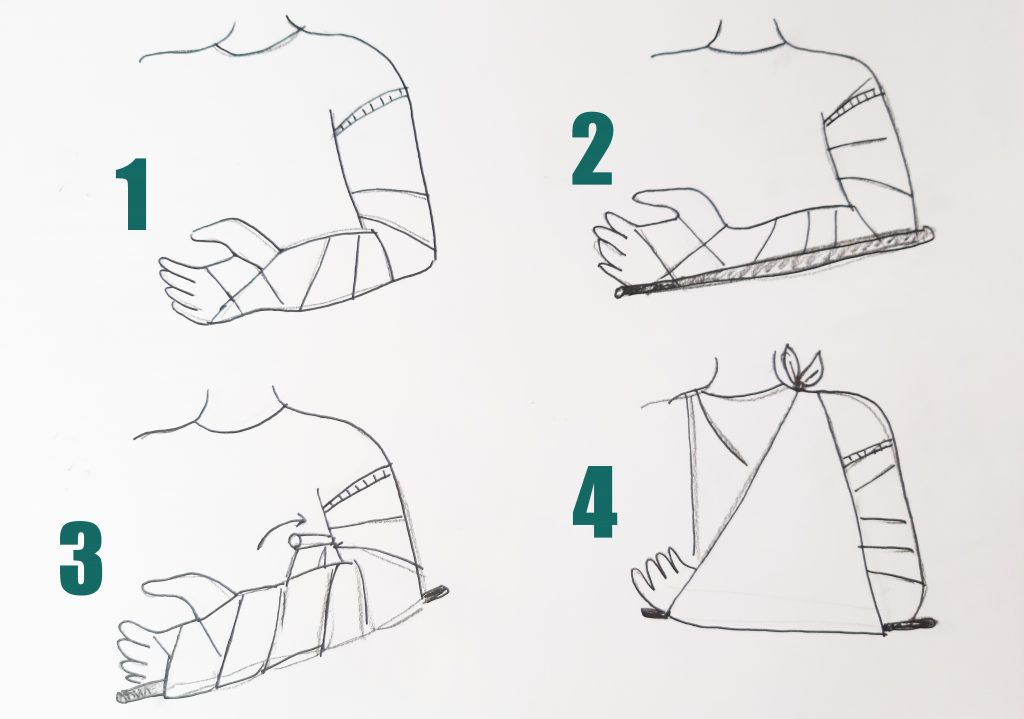 bandażowanie ugryzienia przez węża